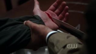 Nắm tay người ta cắt máu ~~